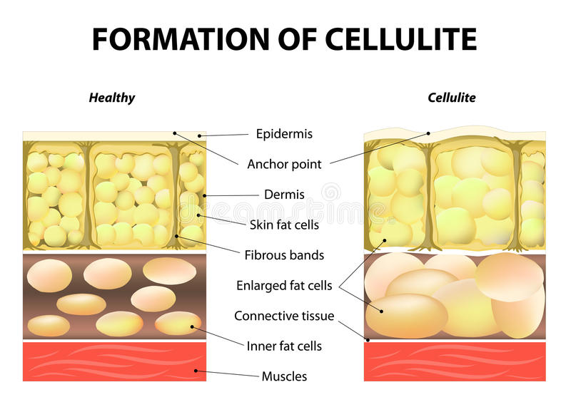 脂肪团的形成 向量例证
