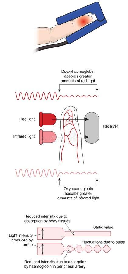 脉冲血氧定量计怎么运转 库存例证