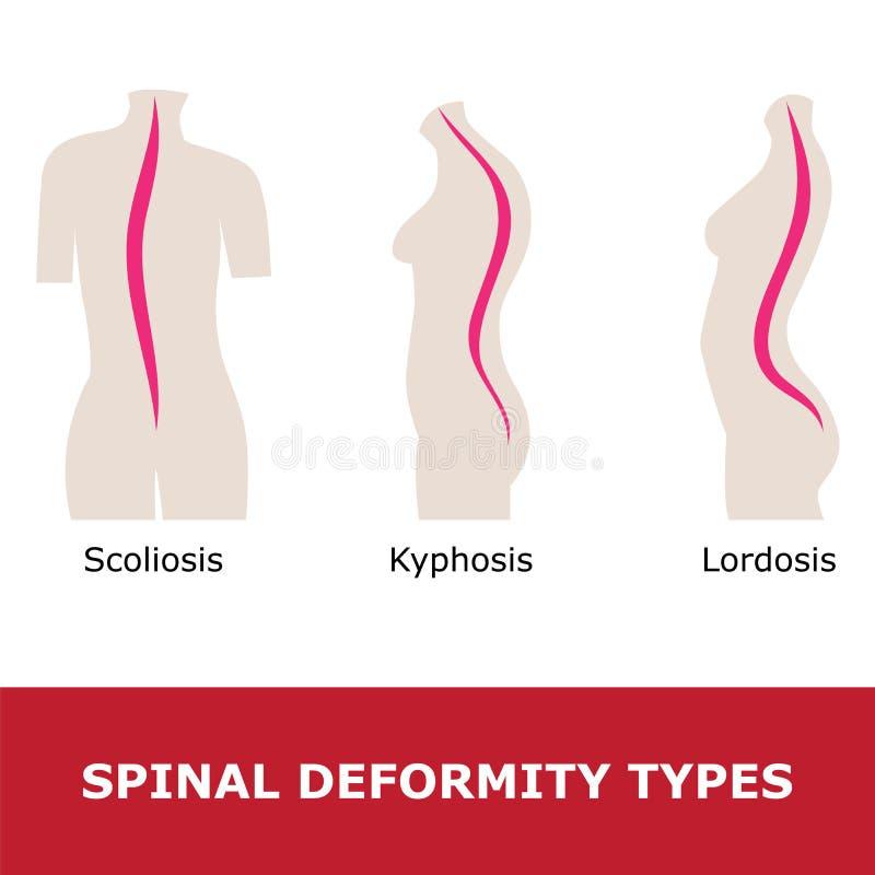 脊柱侧凸、脊柱前凸和驼背 向量例证