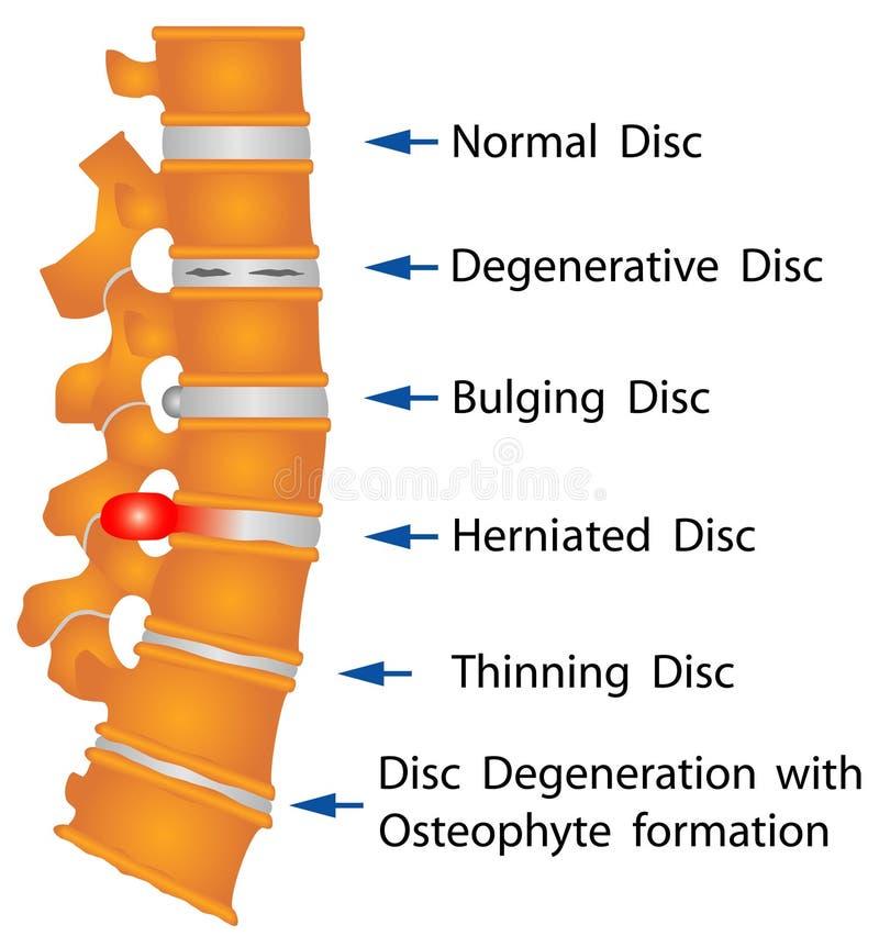 脊椎情况 库存例证