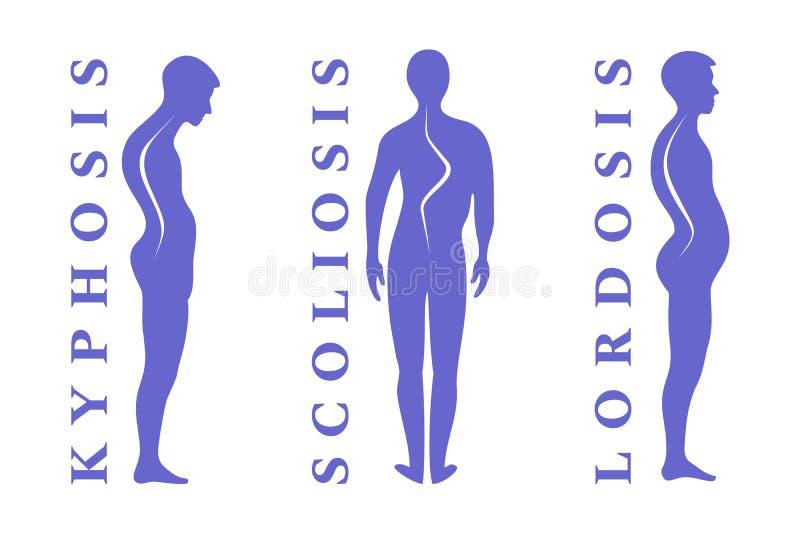 脊椎的疾病 脊柱侧凸,脊柱前凸,驼背 身体姿势瑕疵 在白色的人的剪影 向量Illustratio 库存例证