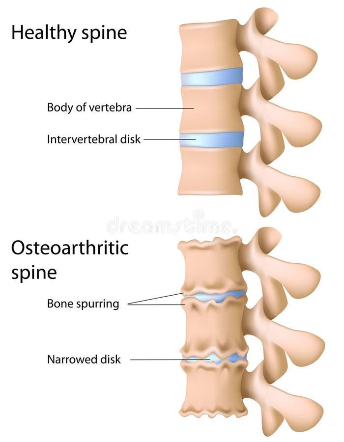 脊椎的骨关节炎 库存例证