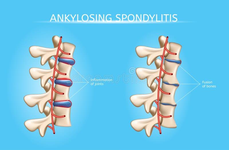 脊椎联接关节炎症状传染媒介Infographic 库存例证