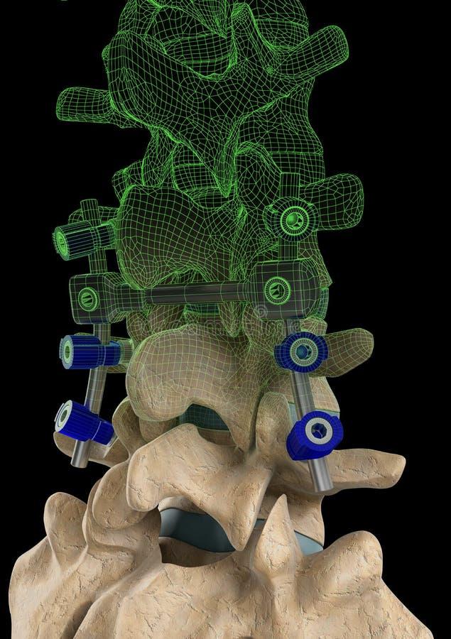 脊椎螺丝 库存例证