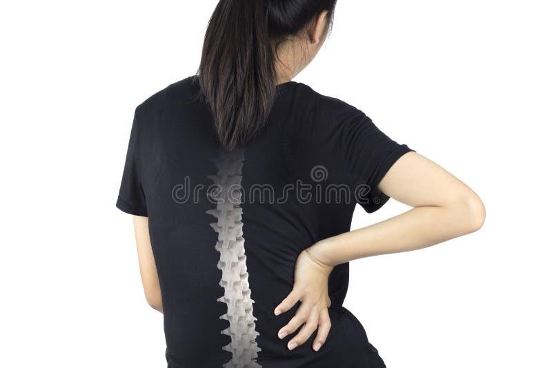 脊椎骨头伤 库存照片