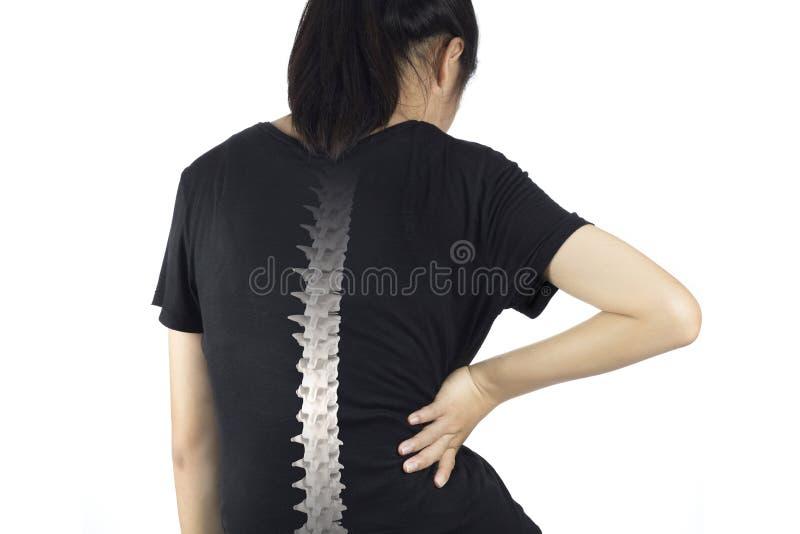 脊椎骨头伤 免版税库存图片