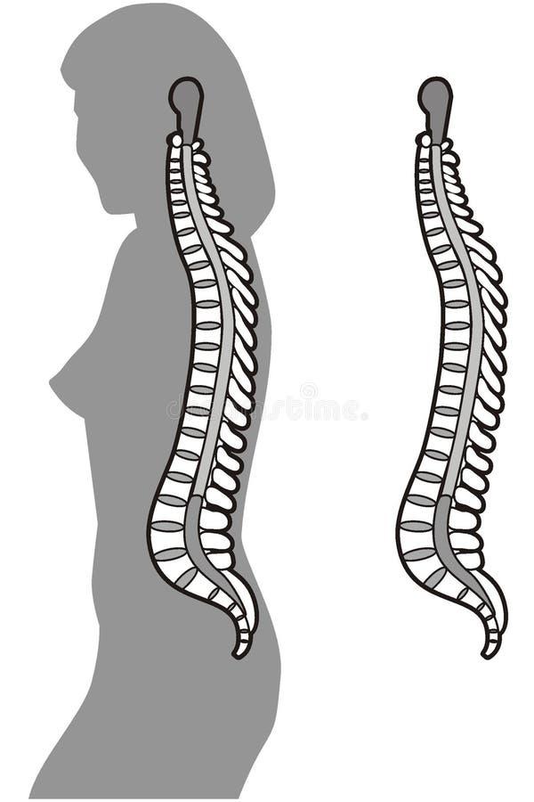 Download 脊椎 向量例证. 插画 包括有 夫人, 光芒, 处理, 女主持人, 夹子, 证据, 女孩, backarrow - 3669936