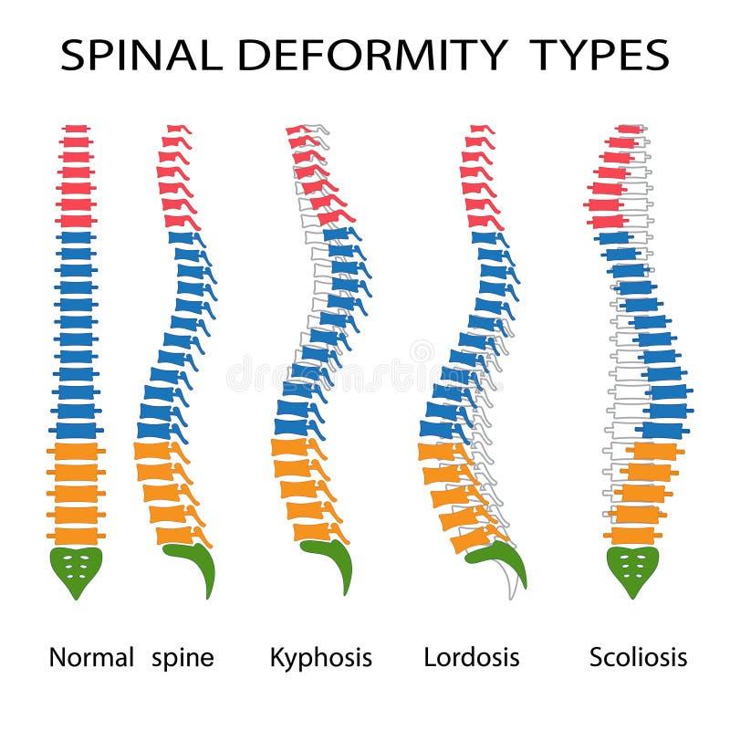 脊髓残疾类型 皇族释放例证