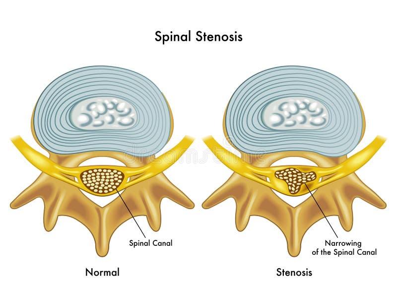 脊髓狭窄 库存例证