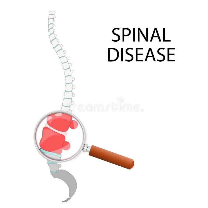 脊髓疾病 腰部部分通过放大镜 皇族释放例证