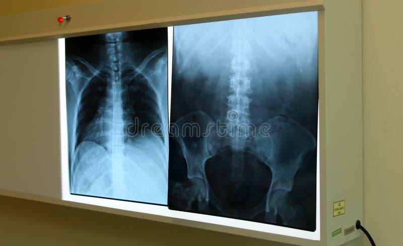 脊髓x光芒胸口和更加低后 免版税库存照片