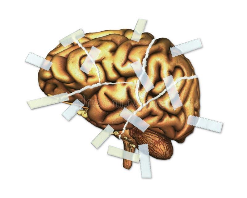 脑伤和修理 皇族释放例证