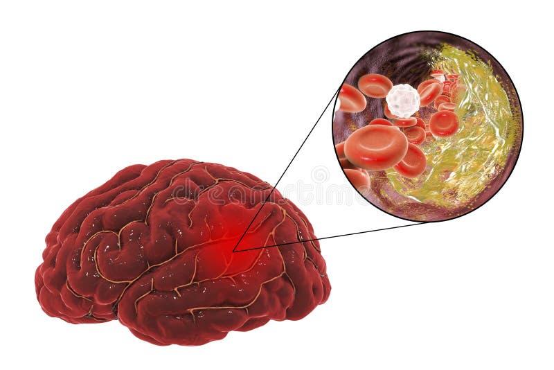 脑子冲程概念 向量例证