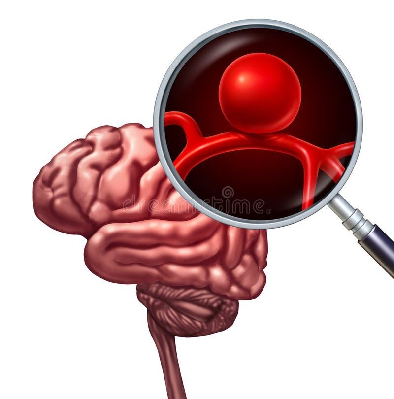 脑子动脉瘤概念 库存例证