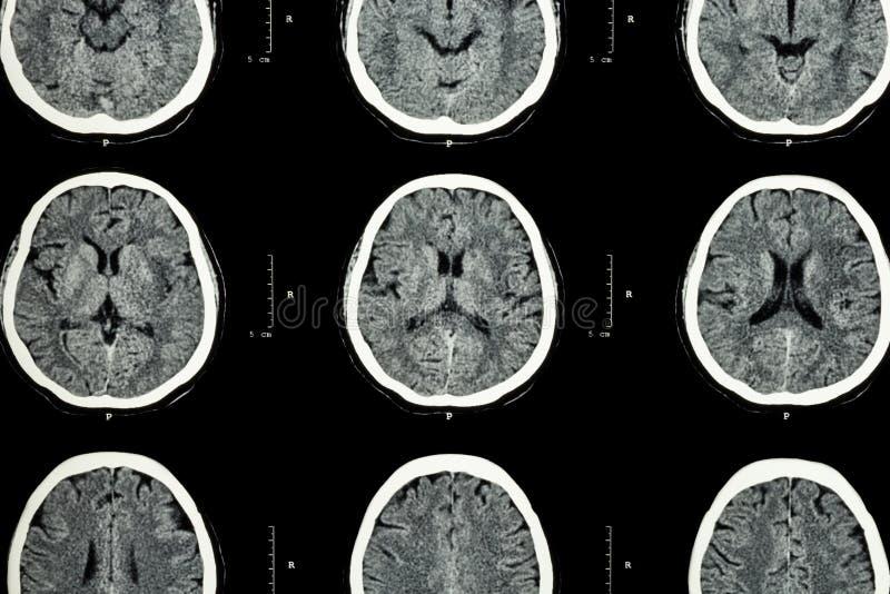 脑子展示正常脑子(神经学背景) CT扫描CT扫描脑子展示正常脑子(神经学背景) 库存照片