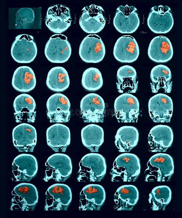 脑子的CT扫描。出血性的冲程。 图库摄影