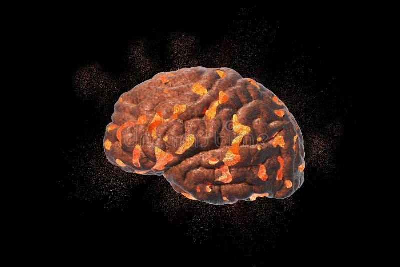 脑子破坏、医疗概念脑疾病的,烧坏、消沉、头疼或者偏头痛 向量例证