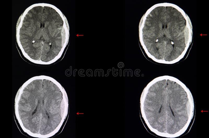 脑子CT扫描,硬膜外的出血 库存照片