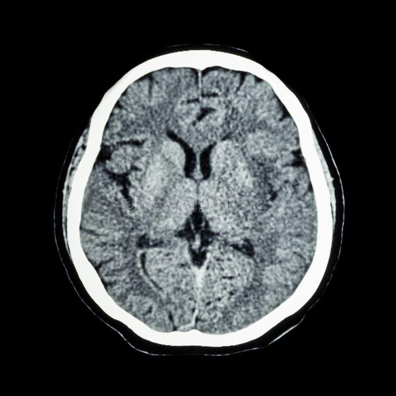 脑子CT扫描:显示正常人's脑子(计算机辅助测试扫描) 图库摄影