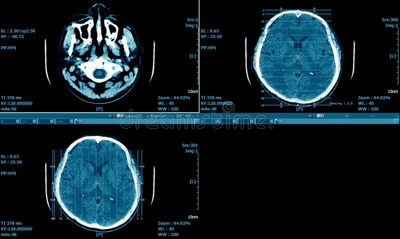 脑子MRI扫描, CT扫描脑子系列,医疗背景 免版税库存图片