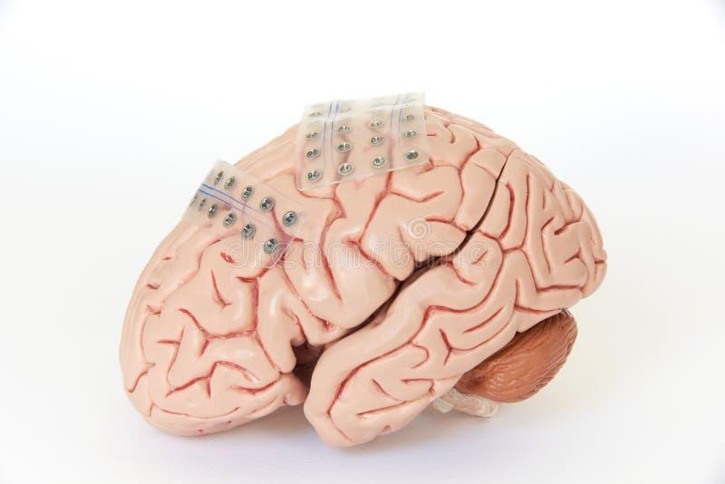 脑波录音或脑波记录仪的硬膜下的栅格电极在人为脑子式样外皮 免版税库存图片