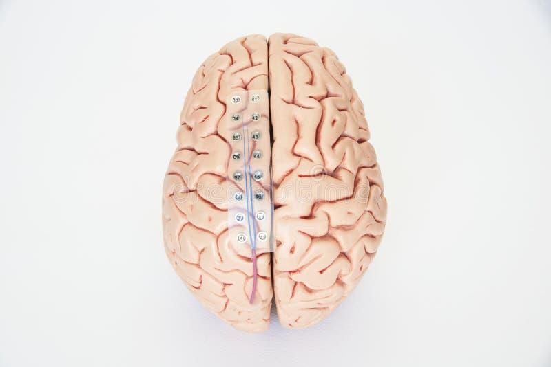 脑波录音或脑波记录仪的硬膜下的栅格电极在脑子模型 库存图片