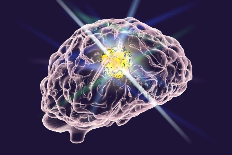 脑瘤的破坏 向量例证