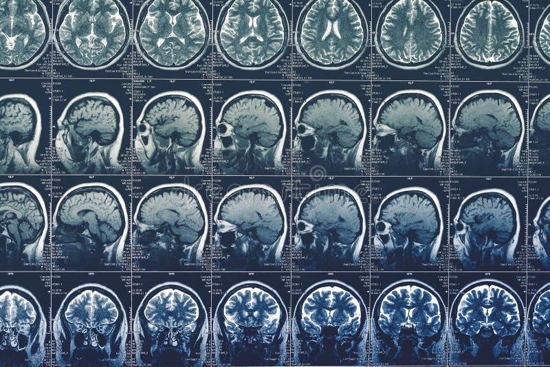 脑部扫描、MRI或者X-射线或者头的磁反应图象 神经学X线体层照相术概念 库存图片