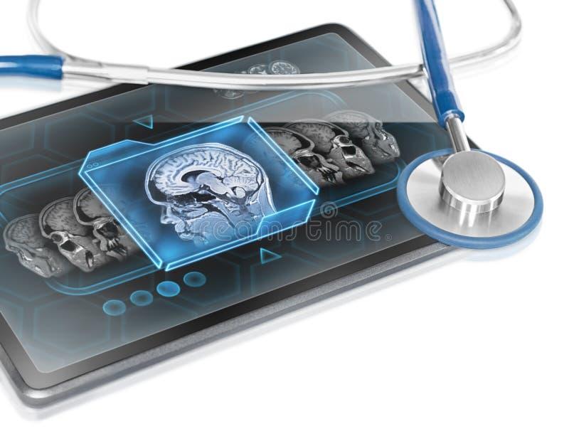 脑部扫描 免版税图库摄影