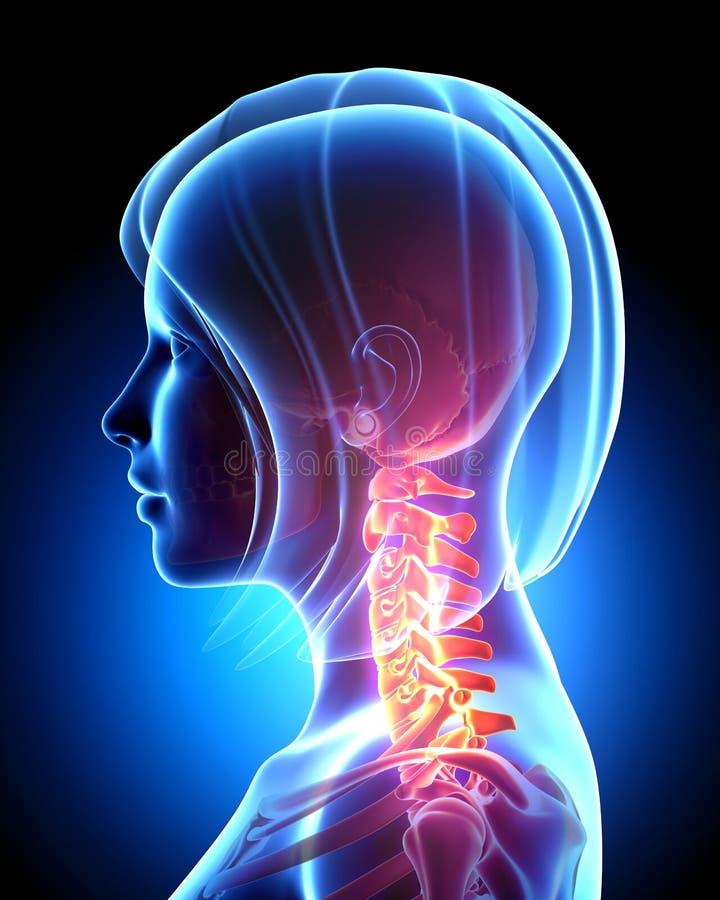 脖子痛 向量例证