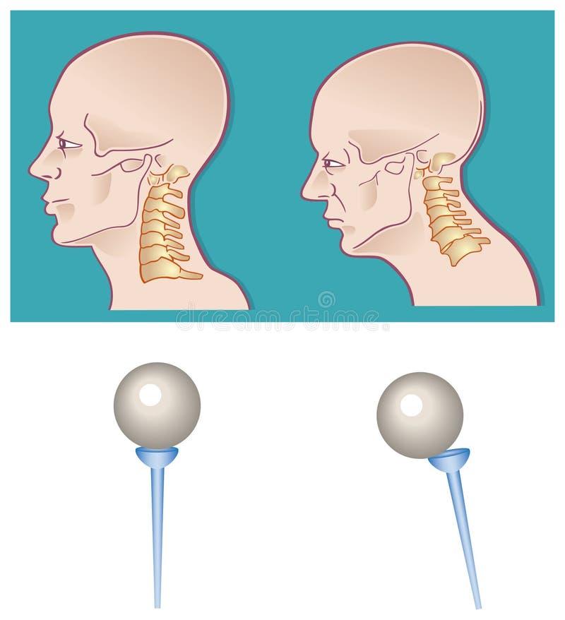 脖子脊椎 皇族释放例证