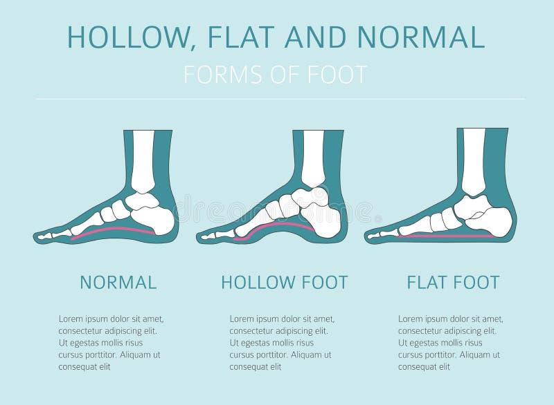 脚变形类型, infographic医疗的desease 凹陷, fl 库存例证