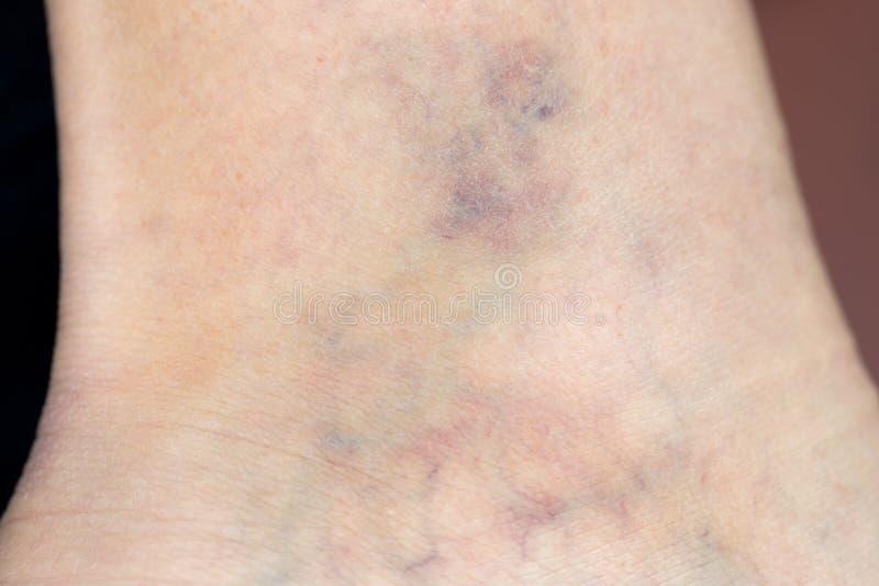 脚的妇女零件与静脉肿的 库存图片