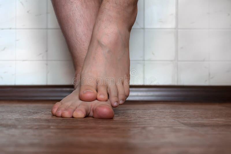 脚的真菌在少年的,造成严重发痒和皮肤损伤 免版税图库摄影