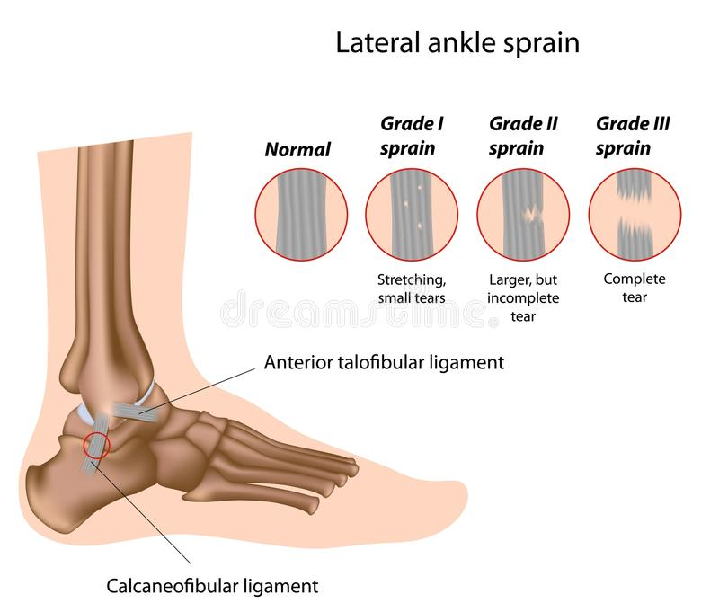 脚腕扭伤分级 向量例证
