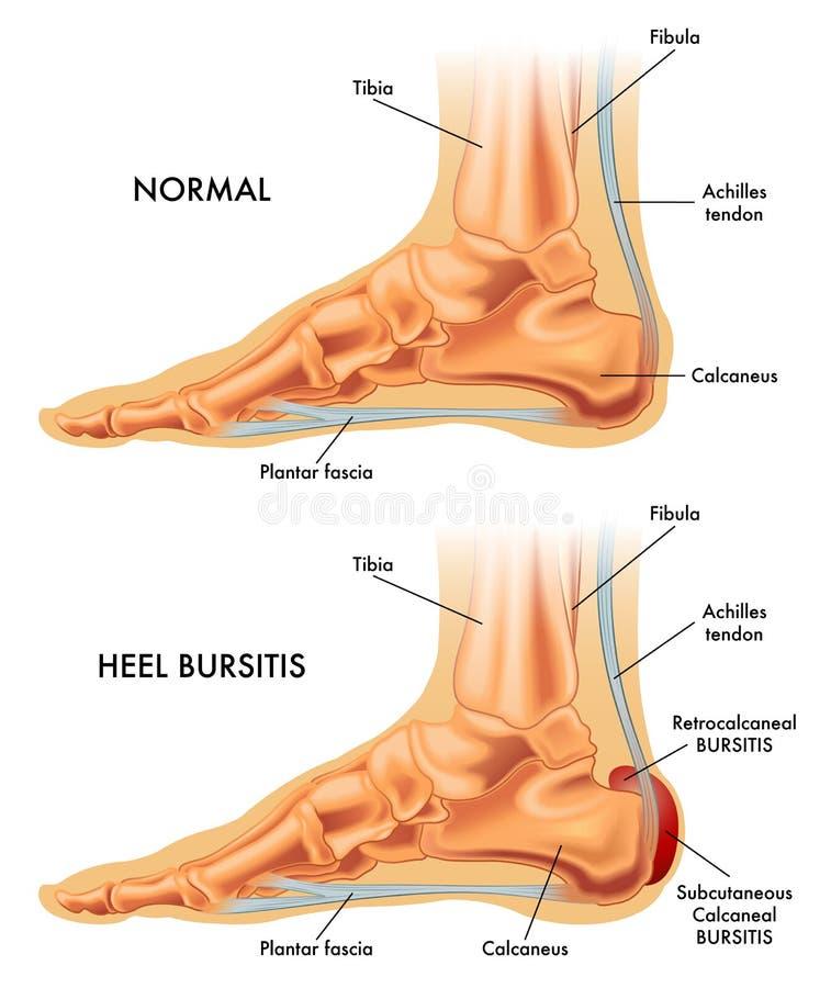脚跟滑囊炎例证 库存图片