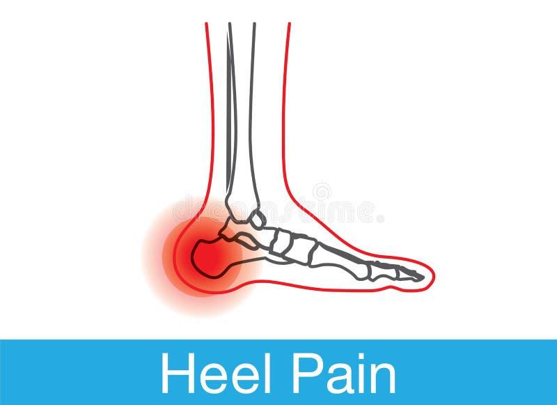 脚跟痛苦概述 皇族释放例证