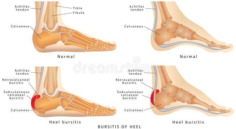 脚跟滑囊炎 向量例证