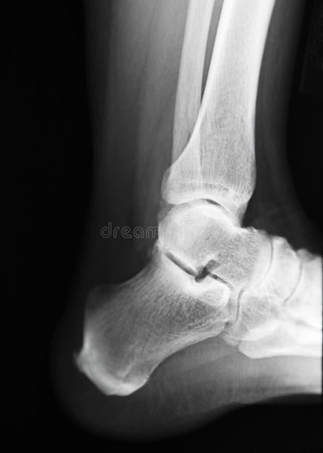 脚跟X-射线 免版税库存图片