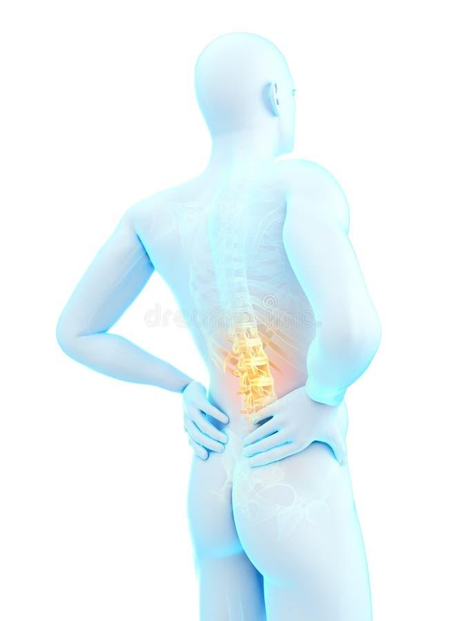 腰疼例证 向量例证