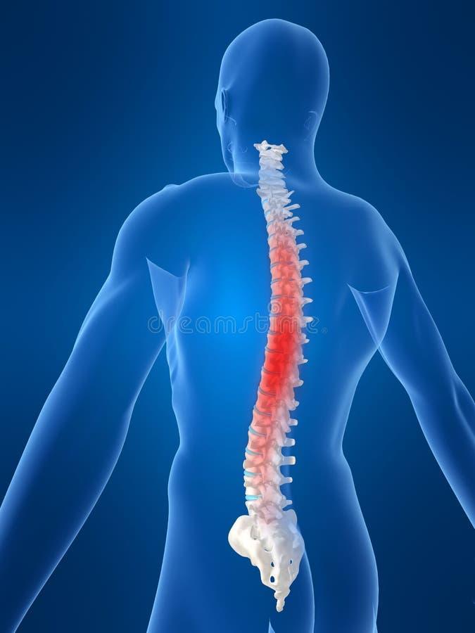 腰疼 向量例证
