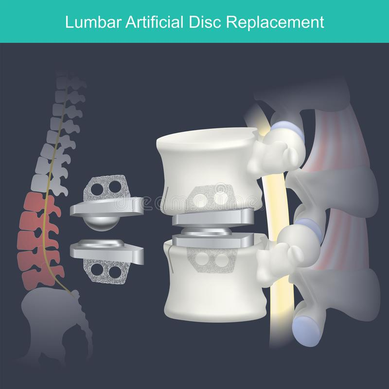 腰部人为圆盘替换 人的骨头解剖学 向量例证