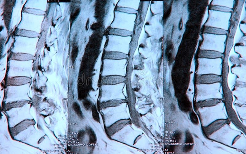 腰部先生mri spine 库存照片