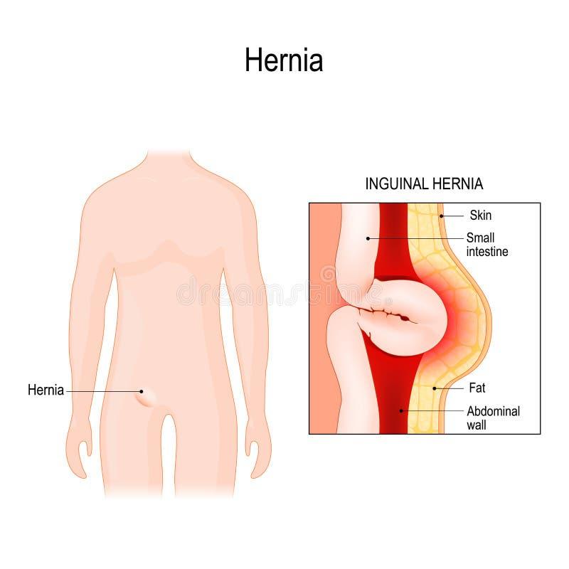 腹股沟疝气 肠出口通过腹部洞的墙壁 库存例证