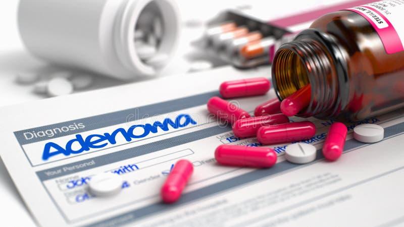 腺瘤-在疾病萃取物的字词 3d例证 库存例证