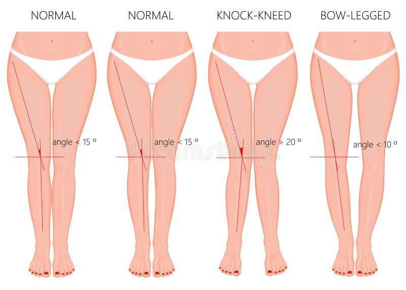 腿的形状 正常和弯曲的腿 膝外翻 鞠躬的腿 库存例证