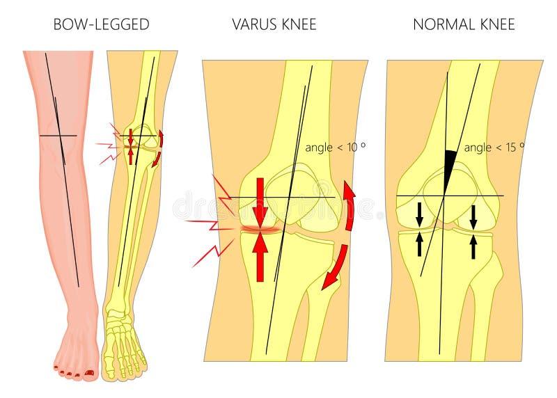 腿的形状 正常和弯曲的腿 膝外翻 鞠躬的腿 向量例证