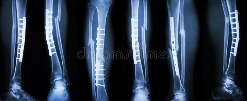 腿破裂和手术治疗的汇集图象由内部定象与板材和螺丝 断裂胫骨和腓骨骨头 免版税库存图片