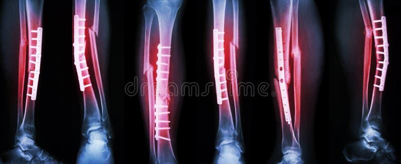 腿破裂和手术治疗的汇集图象由内部定象与板材和螺丝 断裂胫骨和腓骨骨头 库存图片