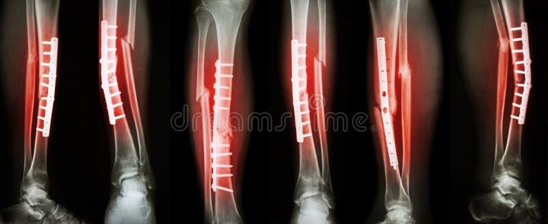 腿破裂和手术治疗的汇集图象由内部定象与板材和螺丝 断裂胫骨和腓骨骨头 图库摄影